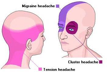 headache-pregnancy